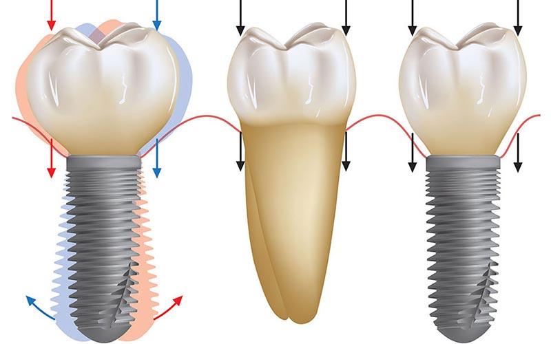 علت شل شدن پیچ دندان