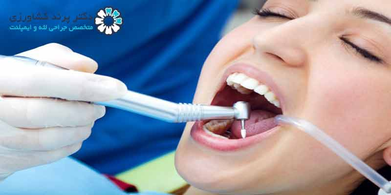 متخصص دندانپزشکی ترمیمی در تهران