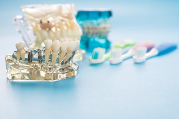 استفاده از ایمپلنت با قیمت مناسب بهترین انتخاب برای جایگزینی دندان هاست.