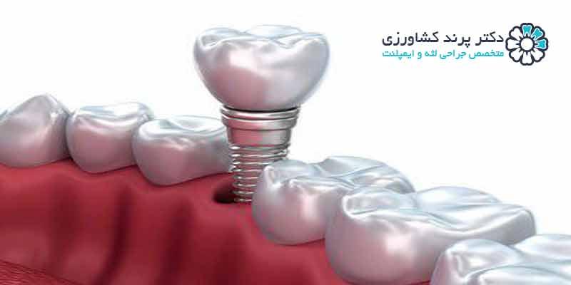 ایمپلنت دندان و موارد منع جراحی ایمپلنت