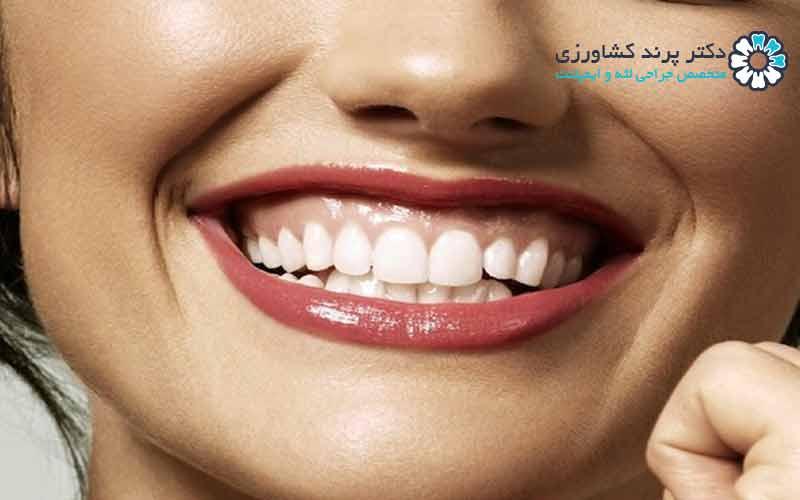 چطور لبخند لثه ای را درمان کنیم