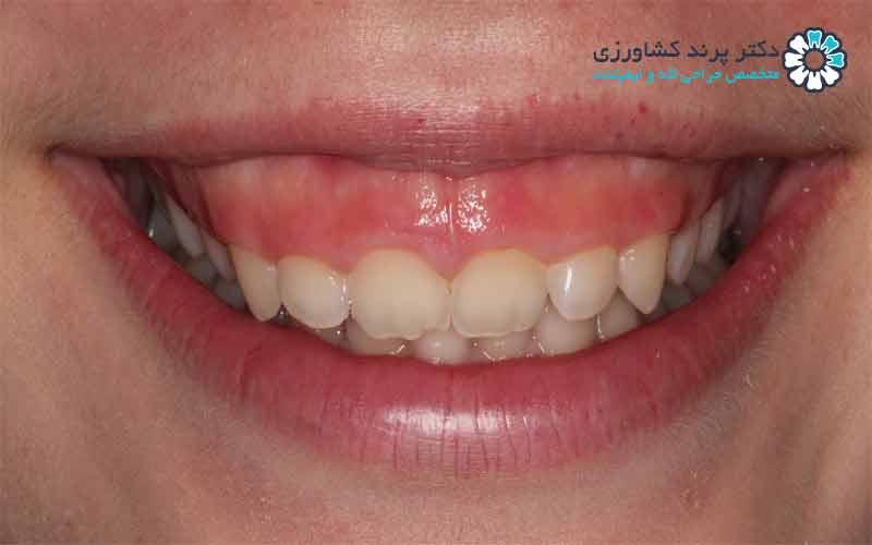 لبخند لثه ای را چگونه درمان کنیم