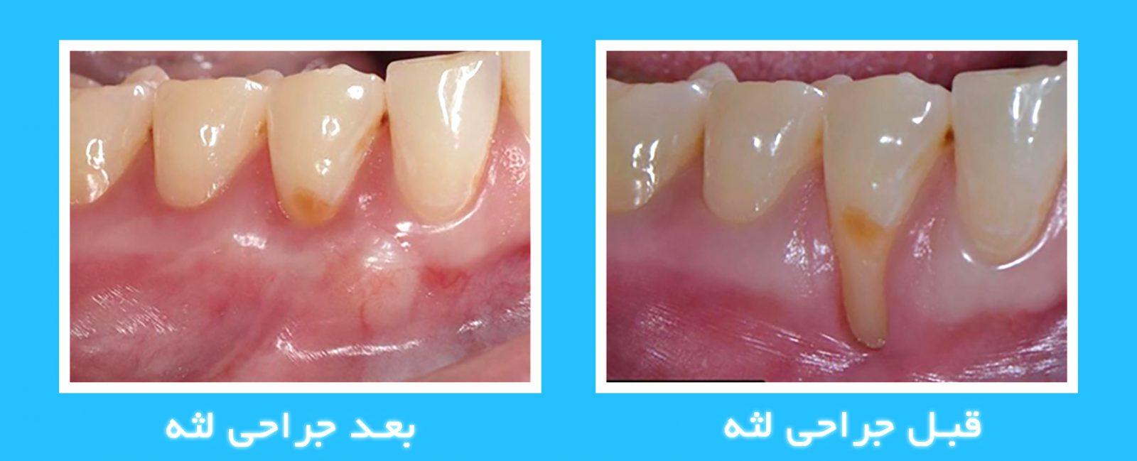 قبل و بعد از جراحی لثه