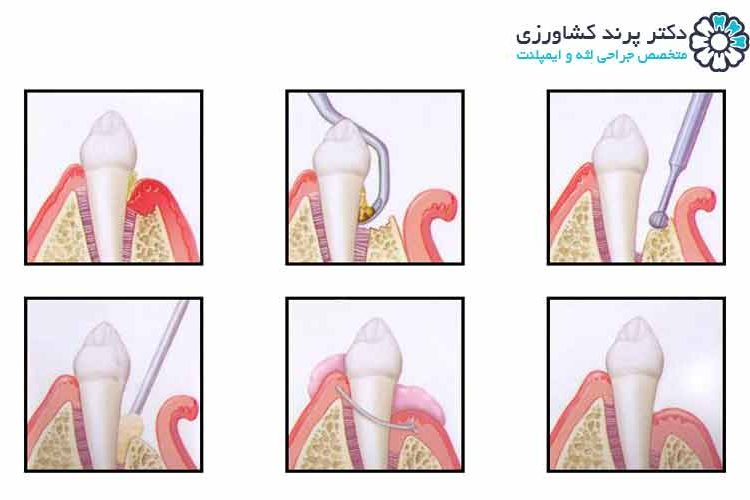 انواع جراحی لثه
