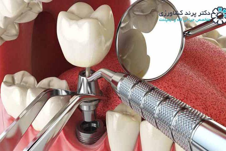 مراحل ایمپلنت دندان چگونه است؟